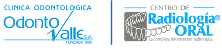 Odontologia, Ortodoncia, Implantes Dentales, Diseño Sonrisa